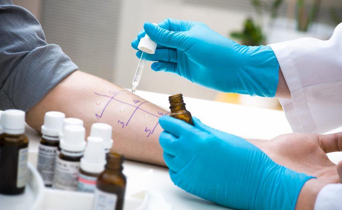 Alergia: Diagnóstico y Pruebas